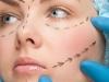 cirurgia-plastica-lifting-14