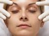 cirurgia-plastica-lifting-2