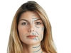cirurgia-plastica-lifting-3
